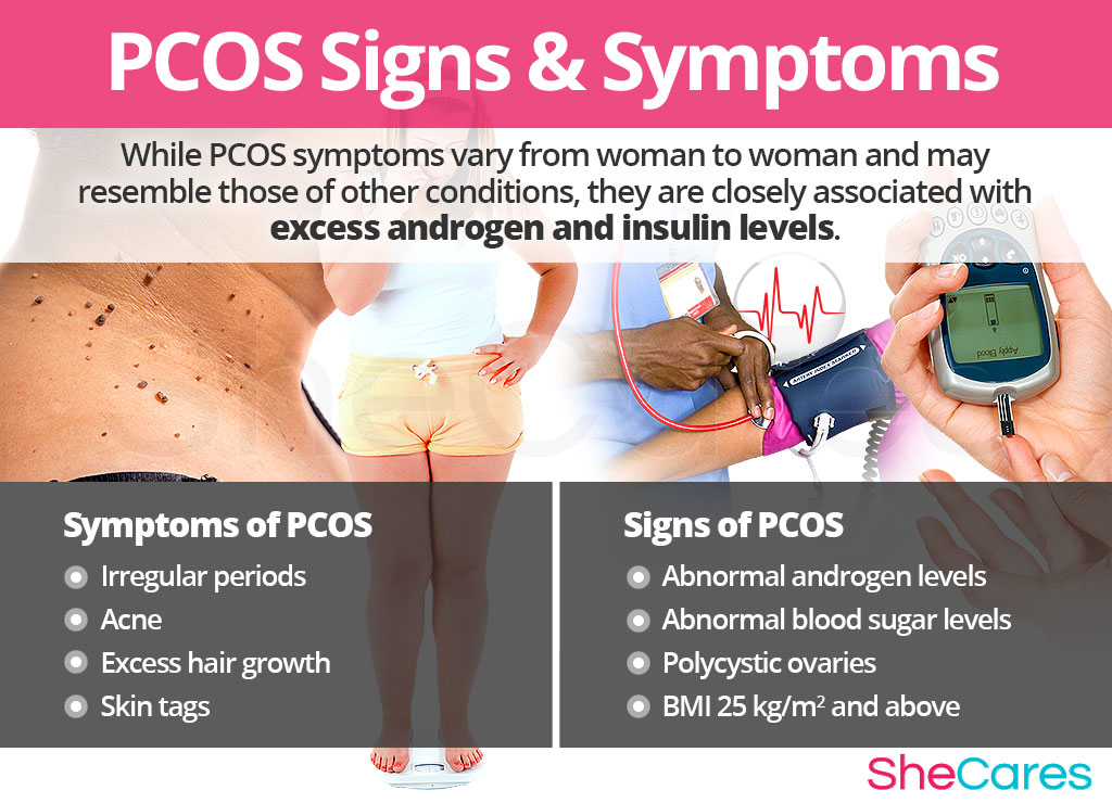 PCOS - Signs and Symptoms