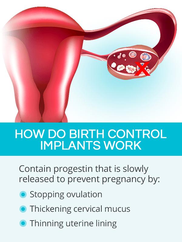How do birth control implants work?