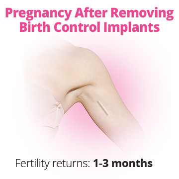 Getting pregnant after birth control implant removal