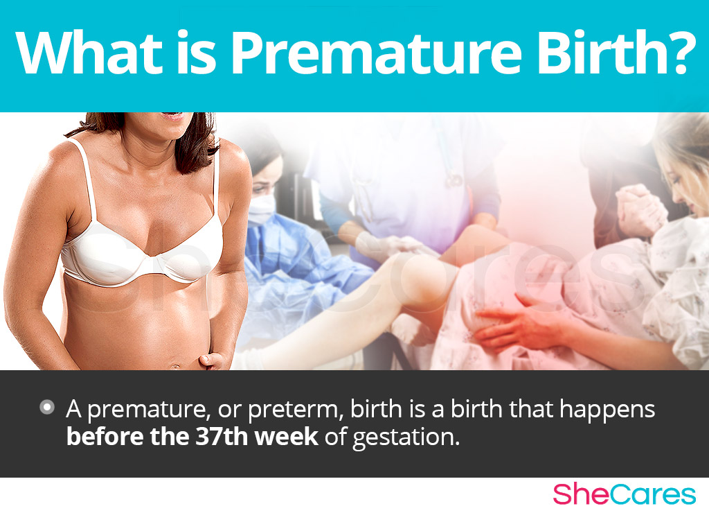 What is Premature Birth?