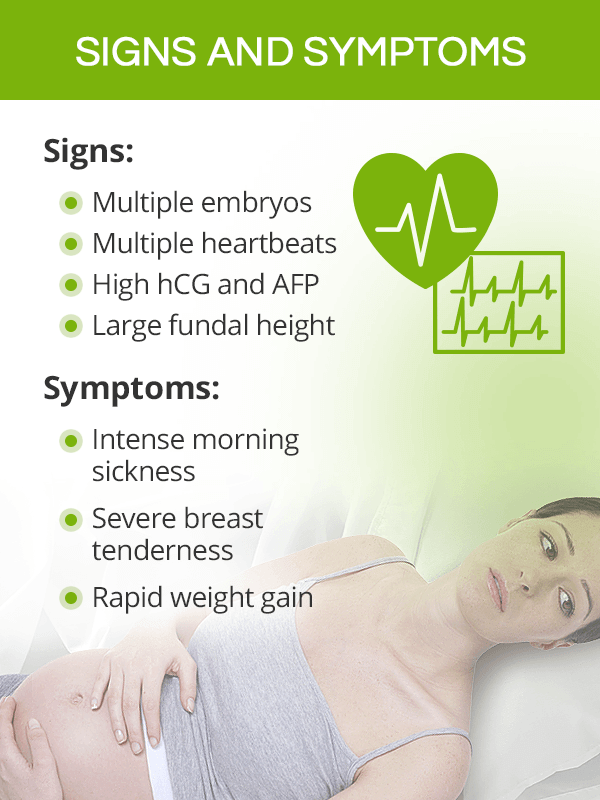 Signs and symptoms of multiple pregnancy