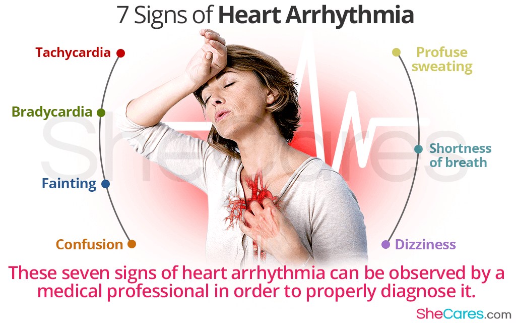 Heart Arrhythmia: 7 Signs of Irregular Heartbeat and More