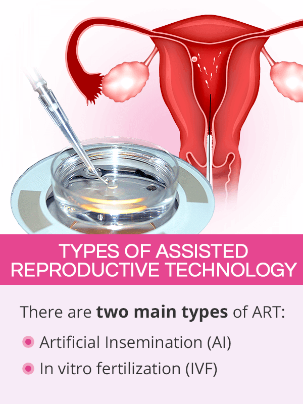 Types of assisted reproductive technology