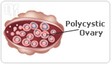 Between 5% and 10% of menstruating women have PCOS