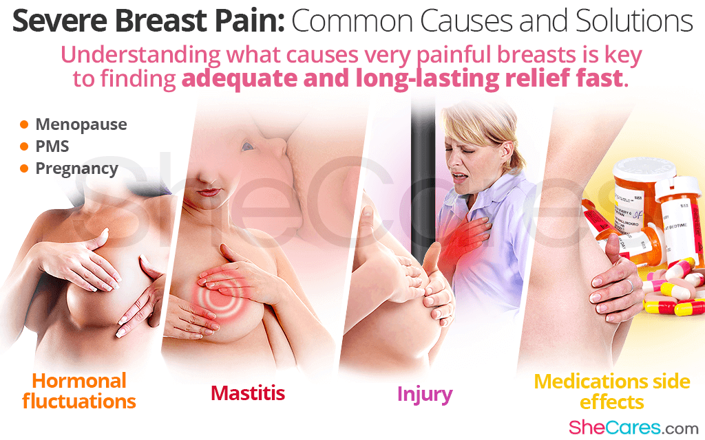 Severe Breast Pain: Common Causes and Solutions