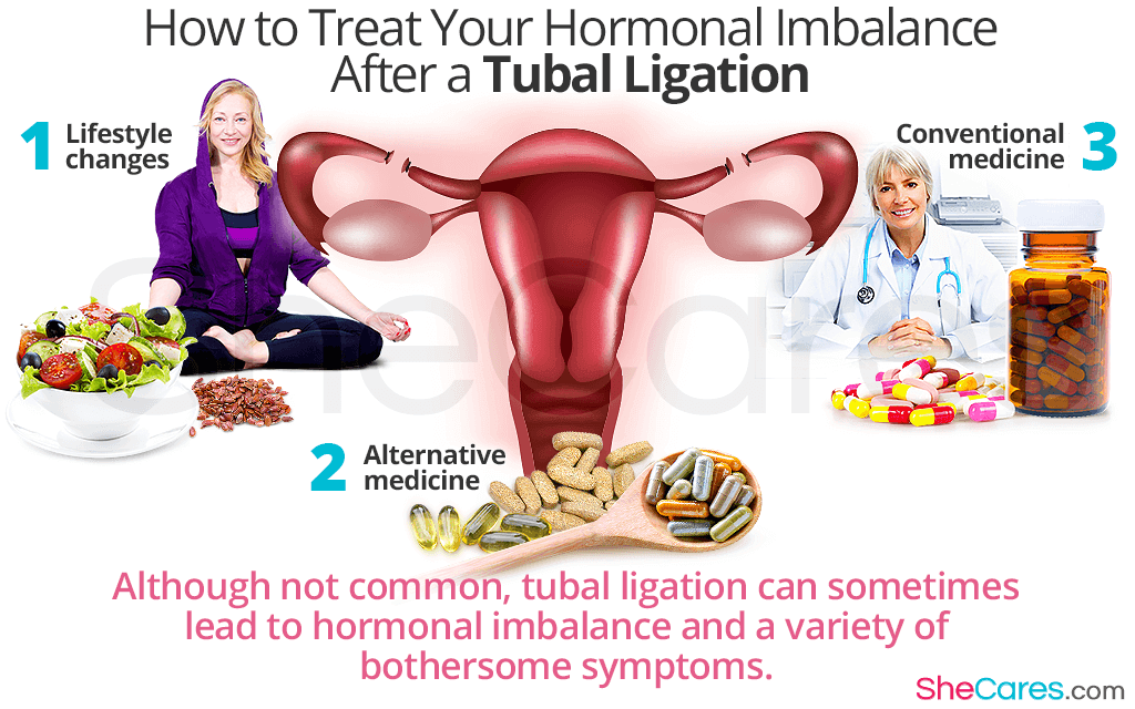 How to Treat Your Hormonal Imbalance After a Tubal Ligation