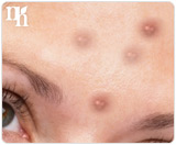 A common cause of acne in adult women is hormonal imbalance.