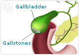 There are additional risks of HRT, like gallbladder disease