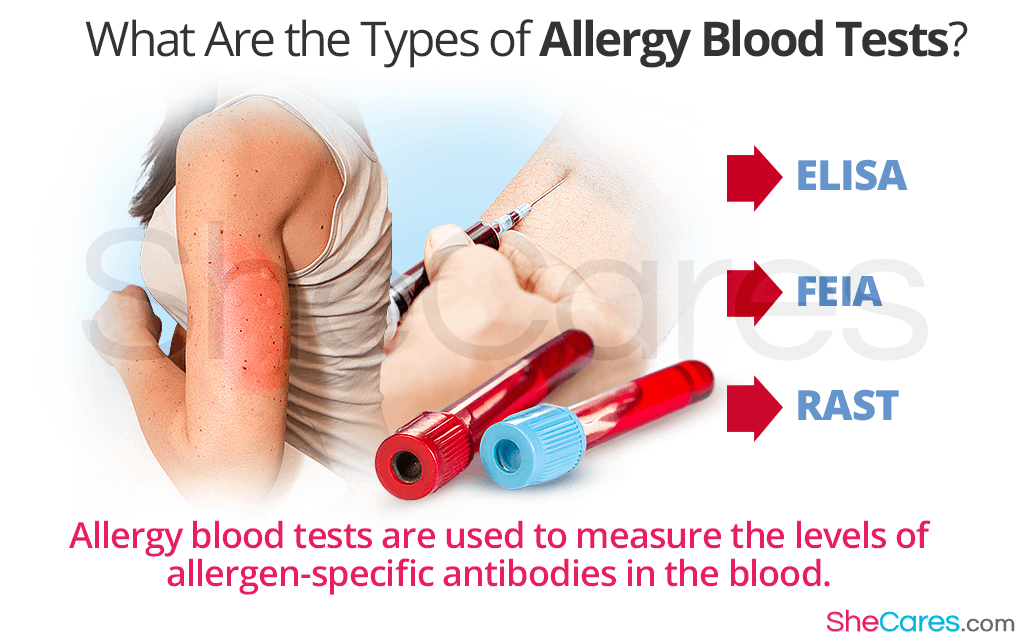 What Are the Types of Allergy Blood Test