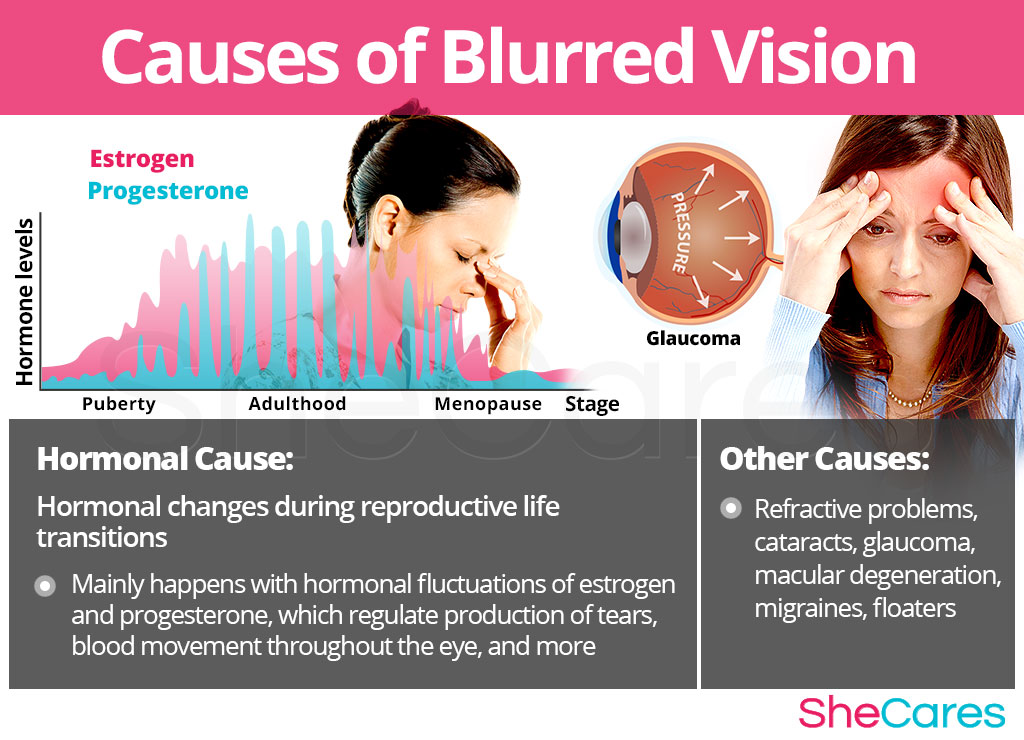 Causes of Blurred Vision