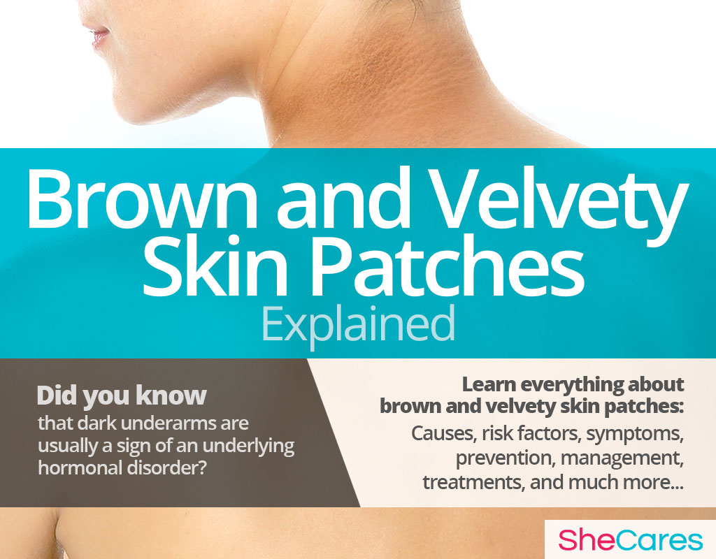 Brown and Velvety Skin Patches