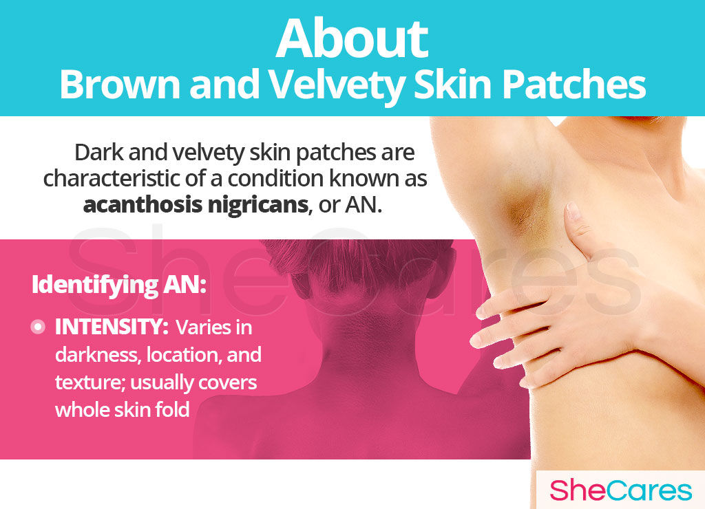 About Brown and Velvety Skin Patches