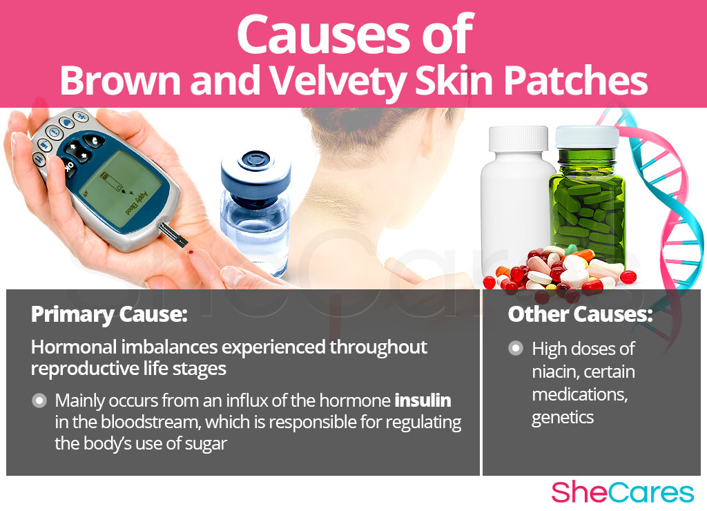 Causes Brown and Velvety Skin Patches