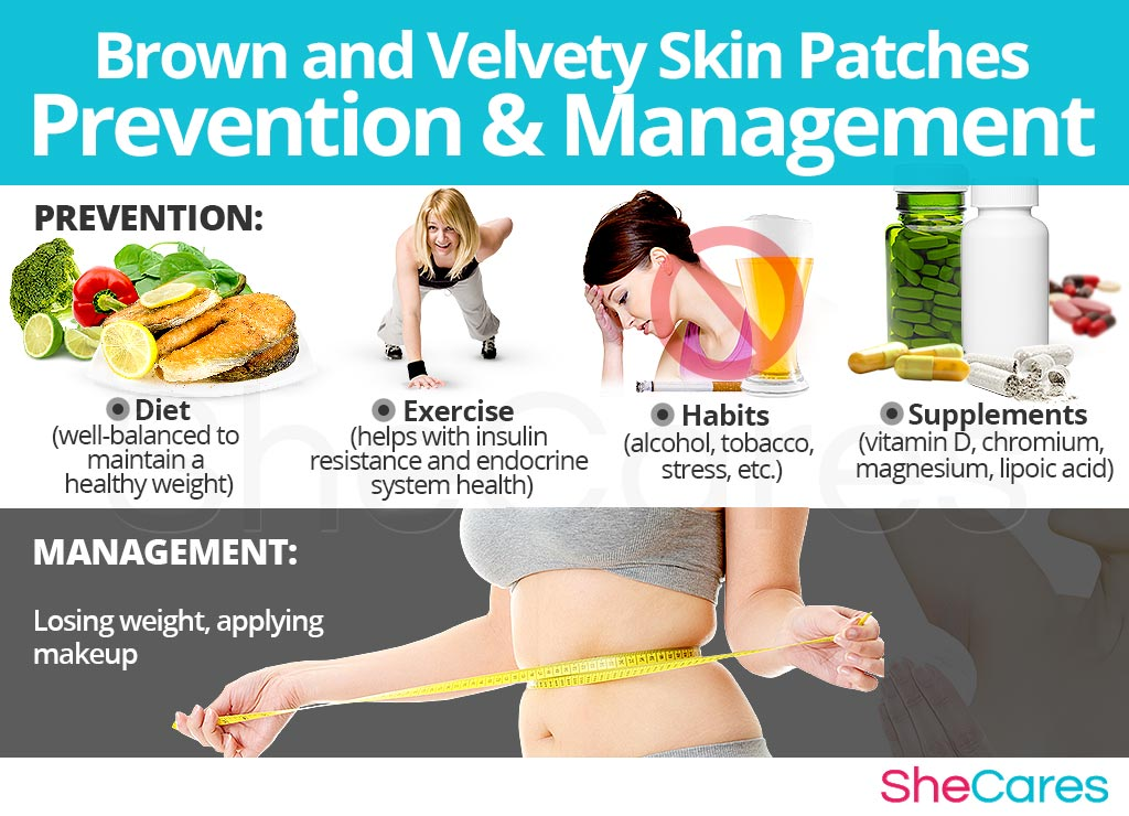 Brown and Velvety Skin Patches - Prevention and Management