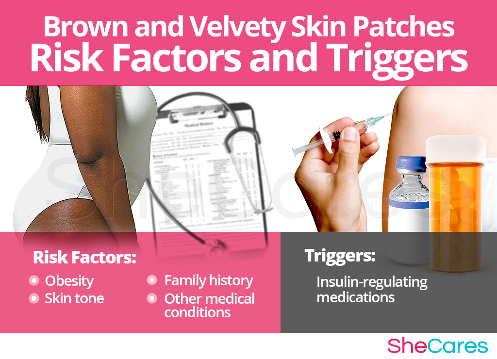 Brown and Velvety Skin Patches - Risk Factors and Triggers