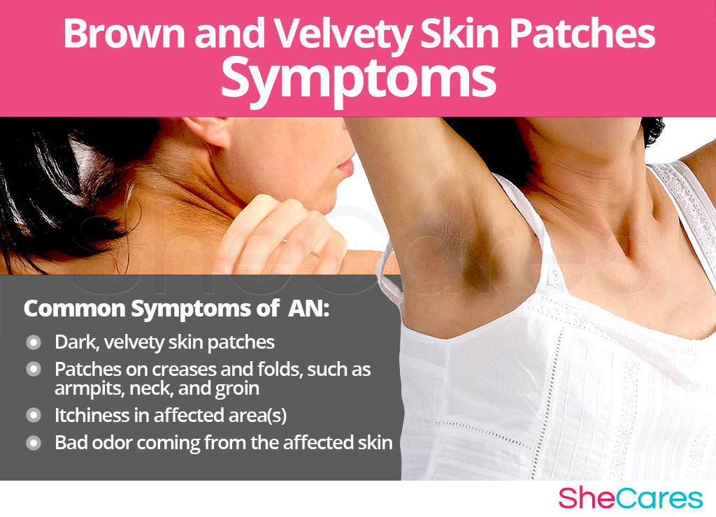 Brown and Velvety Skin Patches - Signs and Symptoms