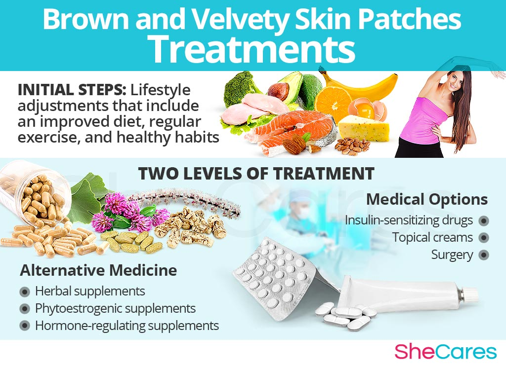 Brown and Velvety Skin Patches Treatments