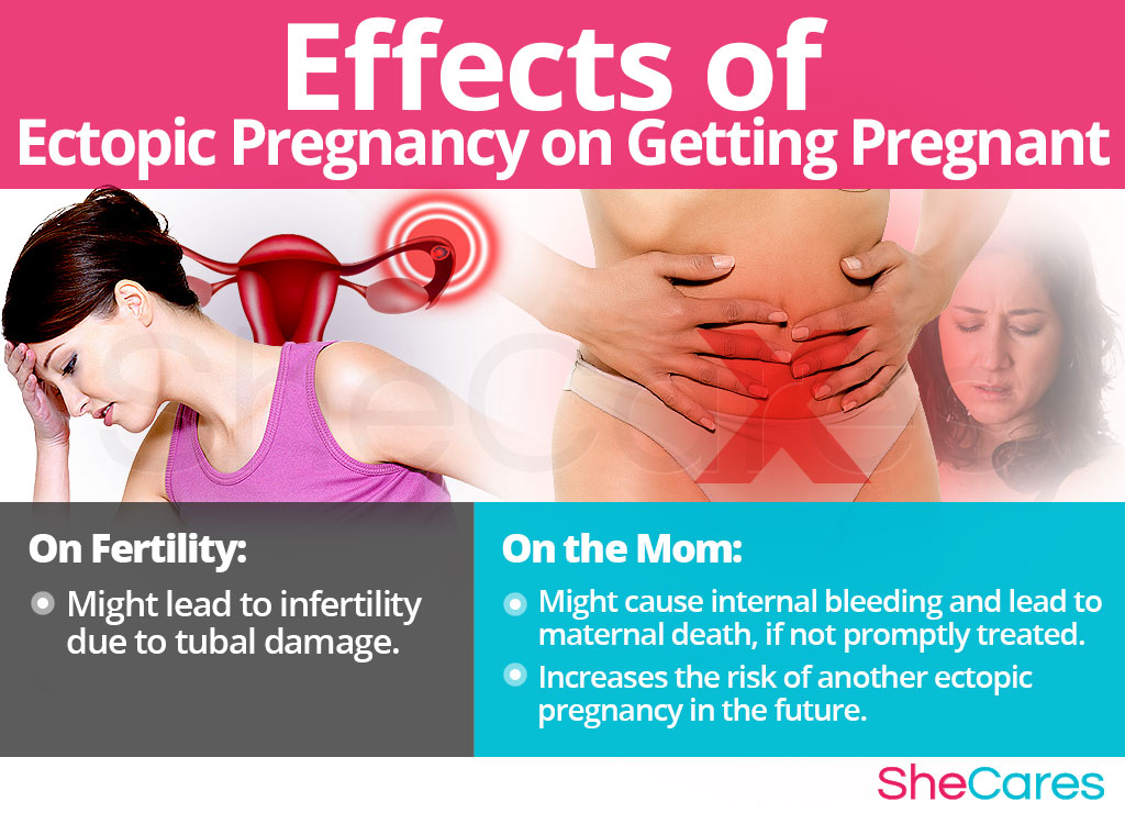Effects of Ectopic Pregnancy on Getting Pregnancy