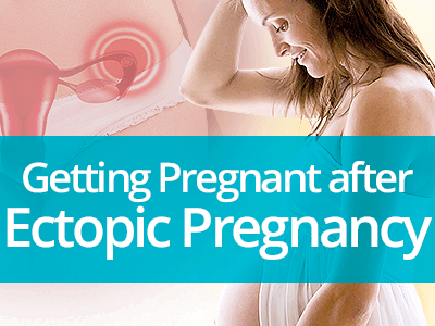 Getting Pregnant after Ectopic Pregnancy