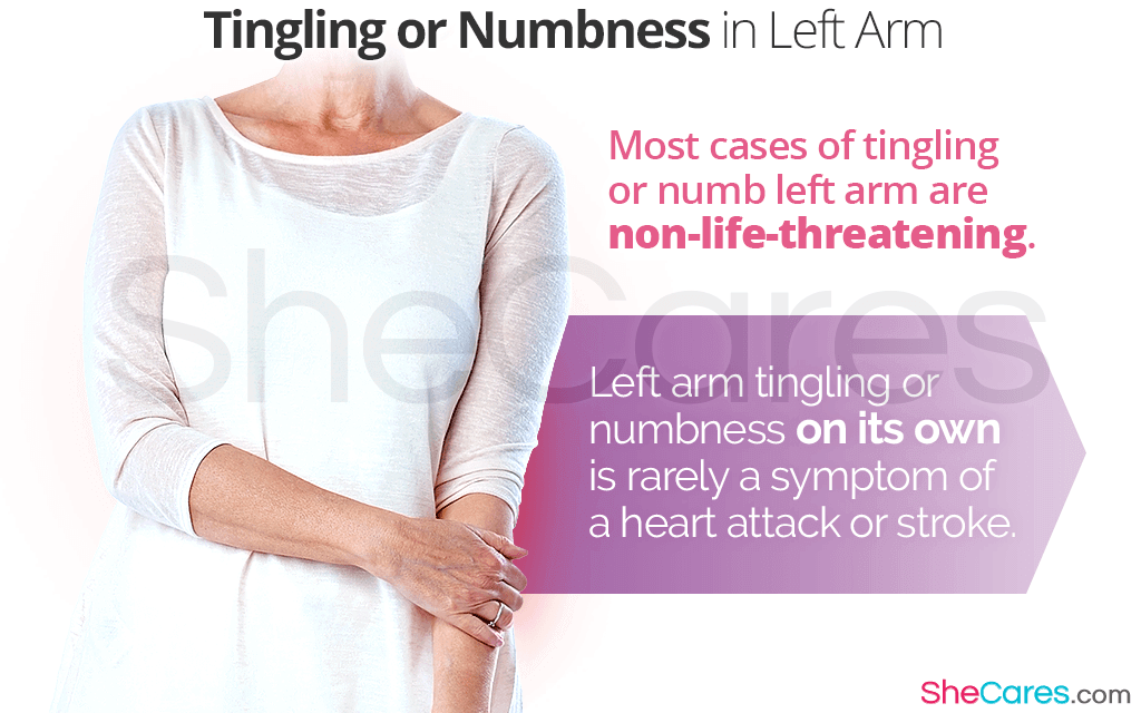 Tingling or Numbness in Left Arm: Should I Be Worried?