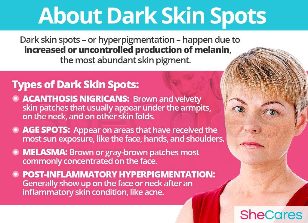 About Dark Skin Spots