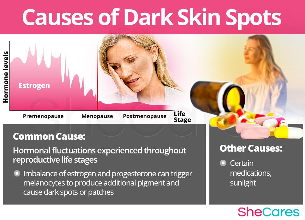 Causes of Dark Skin Spots