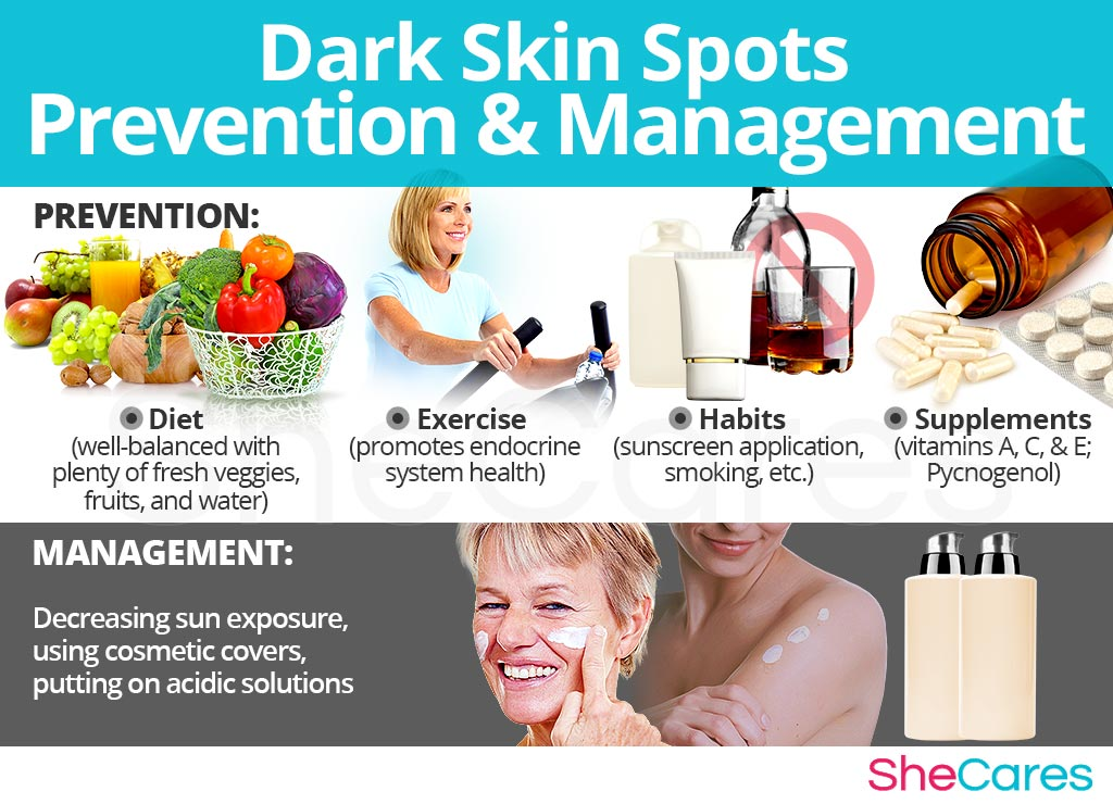 Dark Skin Spots - Prevention and Management