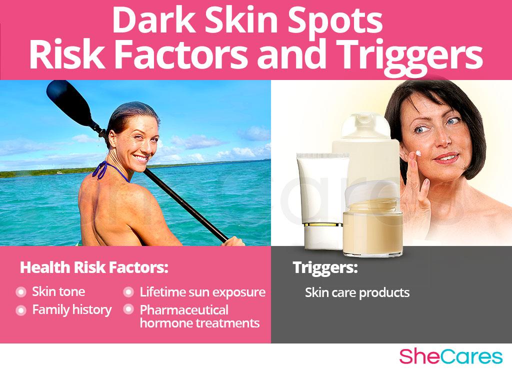 Dark Skin Spots - Risk Factors and Triggers