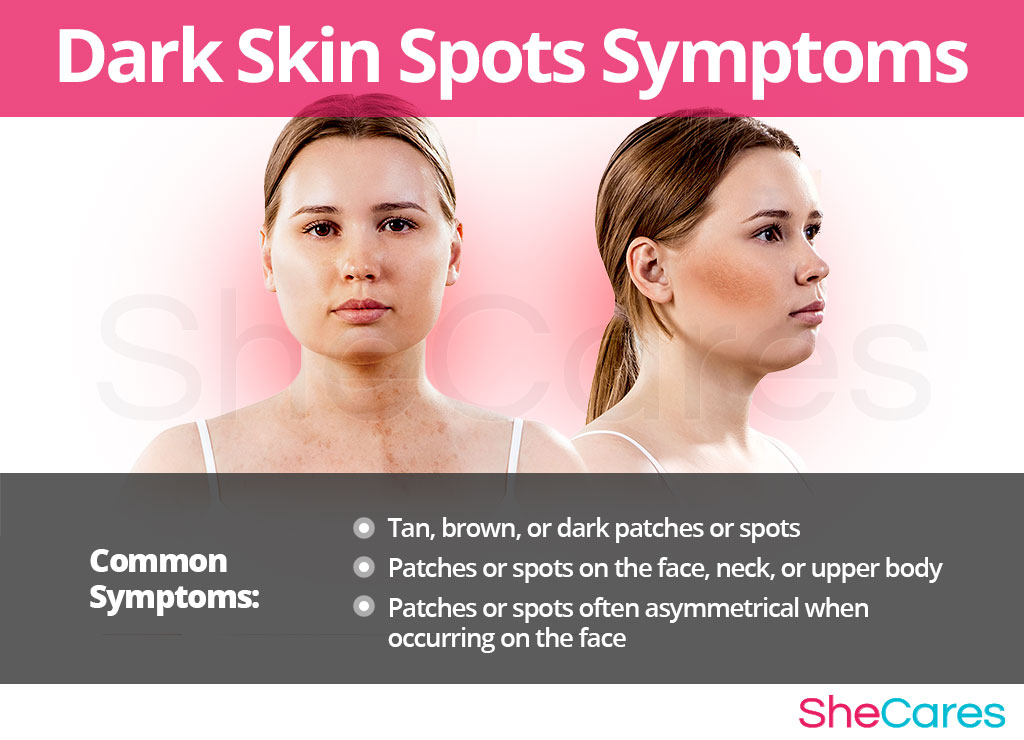Dark Skin Spots Symptoms