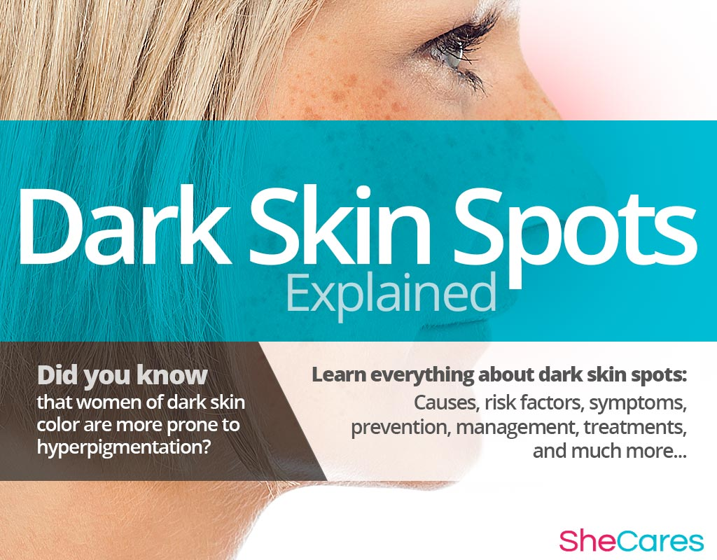 Dark Skin Spots