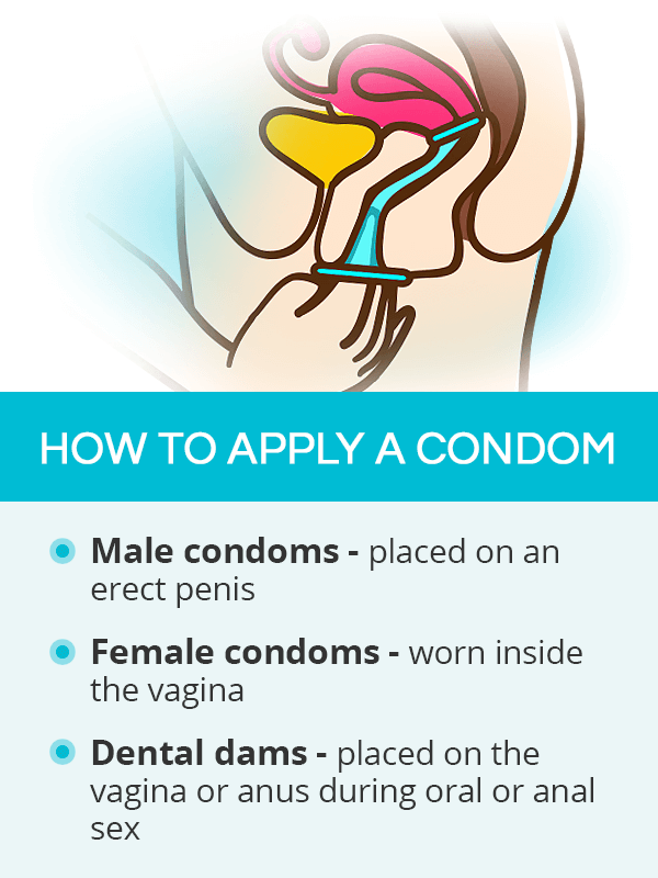 How to apply a condom