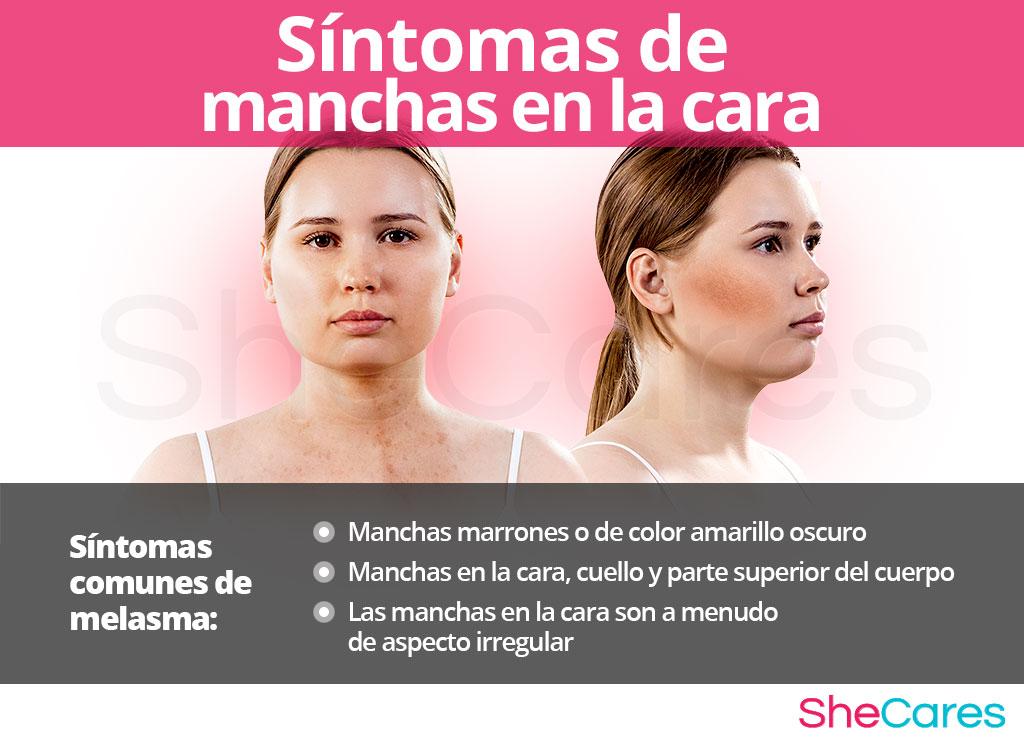 Síntomas de las manchas en la cara