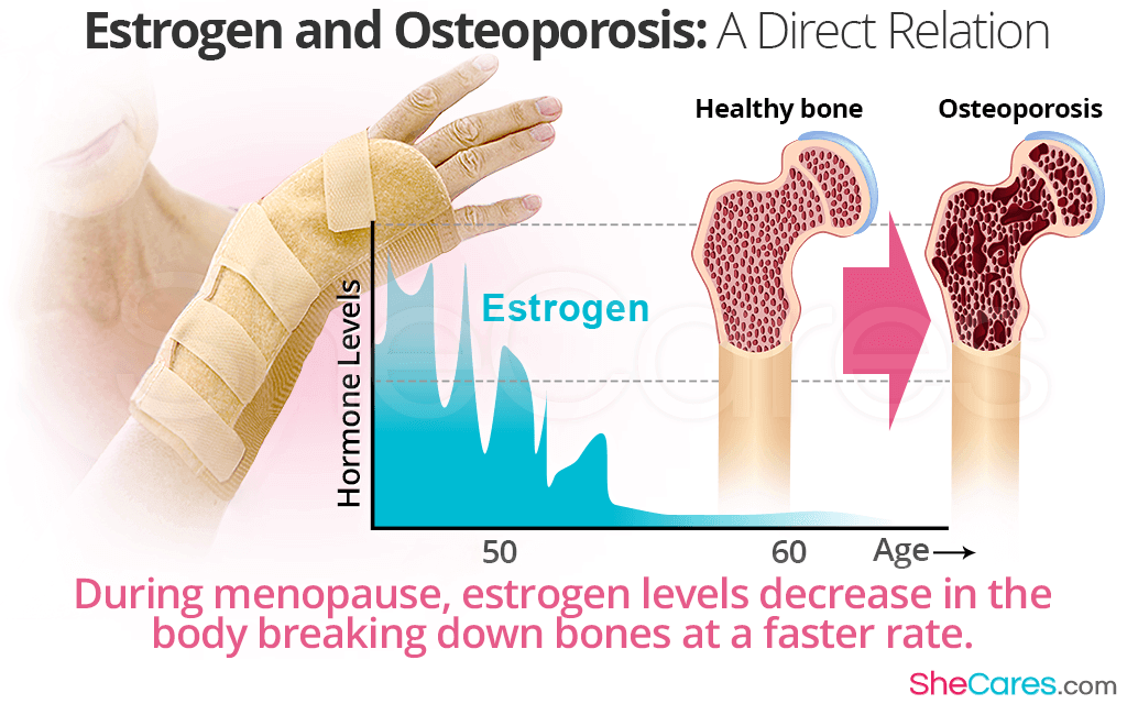 During menopause, estrogen levels decrease in the body breaking down bones at a faster rate.