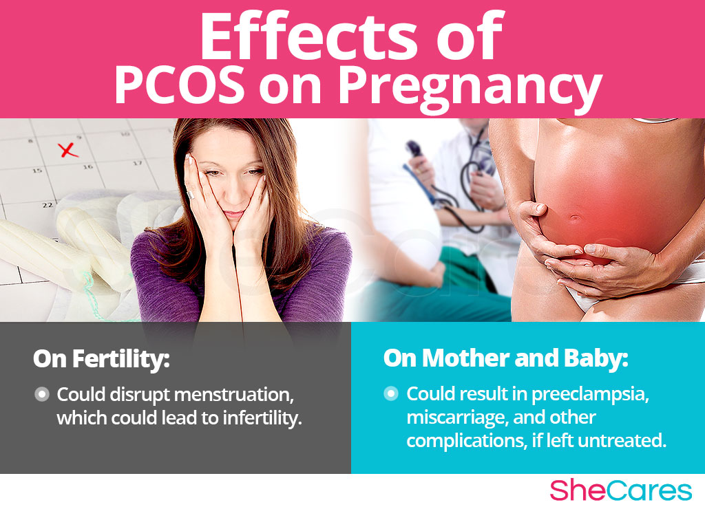 Effects of PCOS on Pregnancy