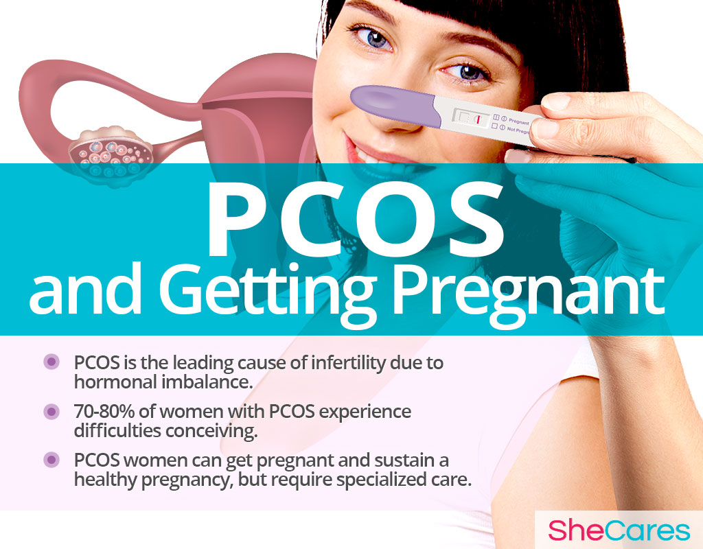 PCOS and Getting Pregnant