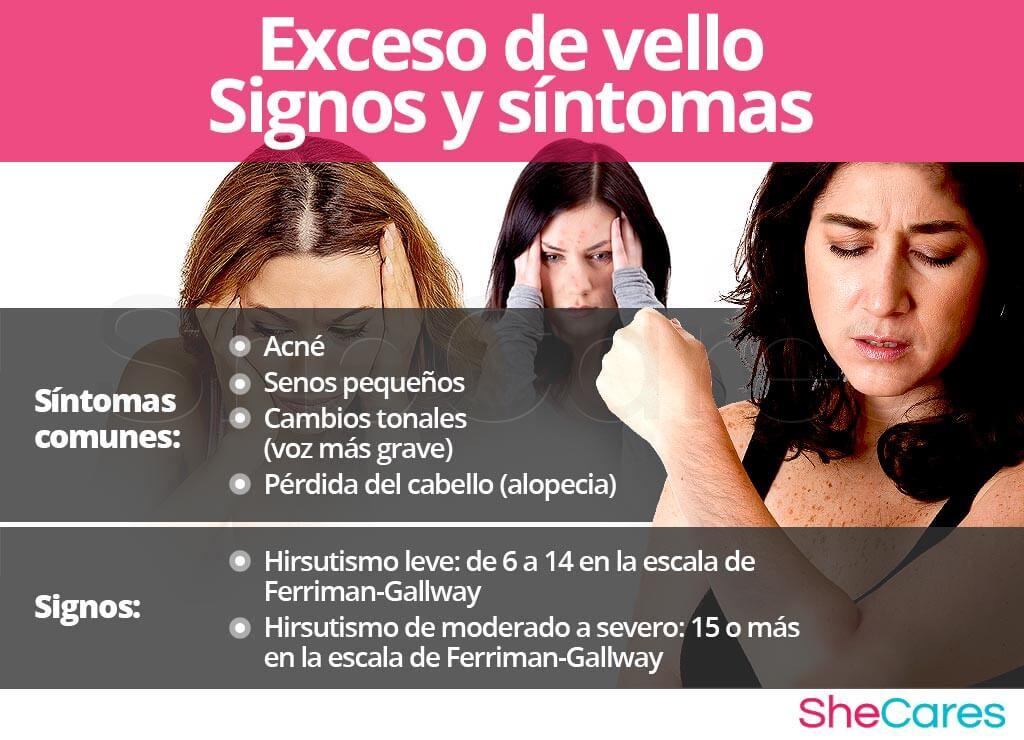 Signos y síntomas del exceso de vello
