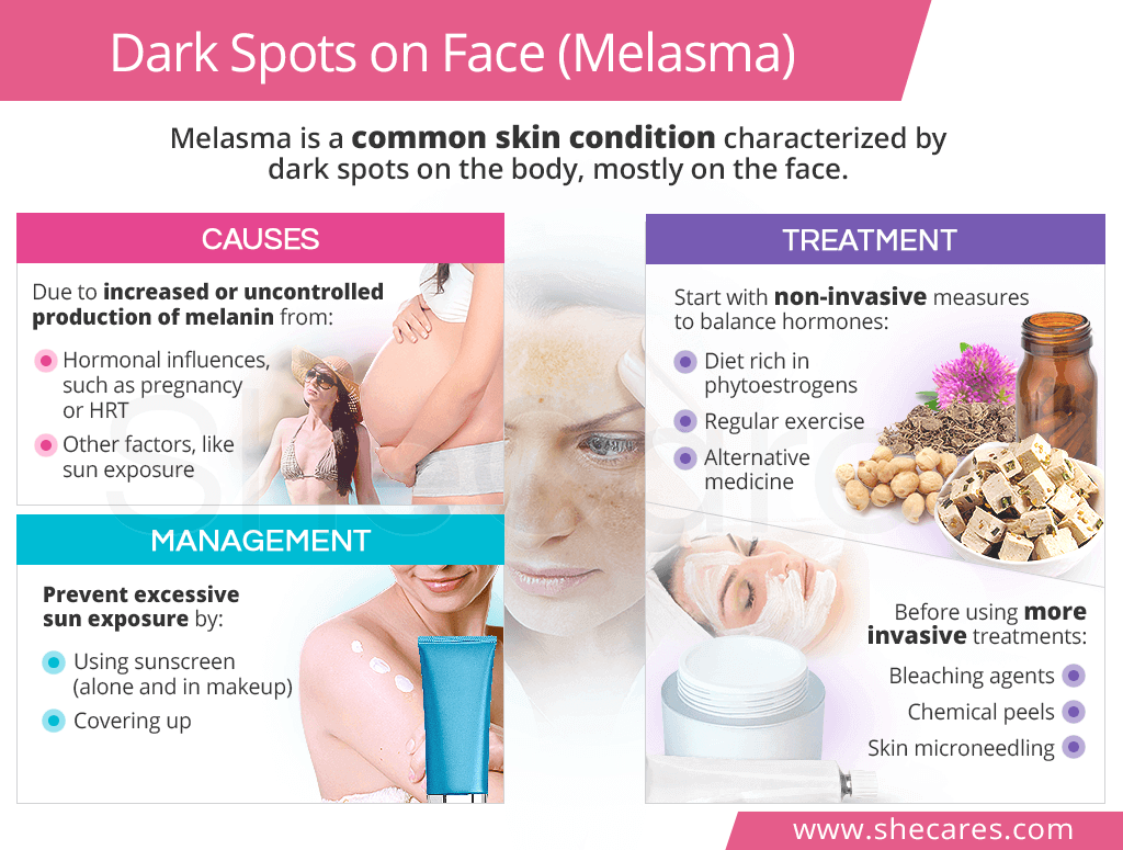 Dark Spots on Face (Melasma)