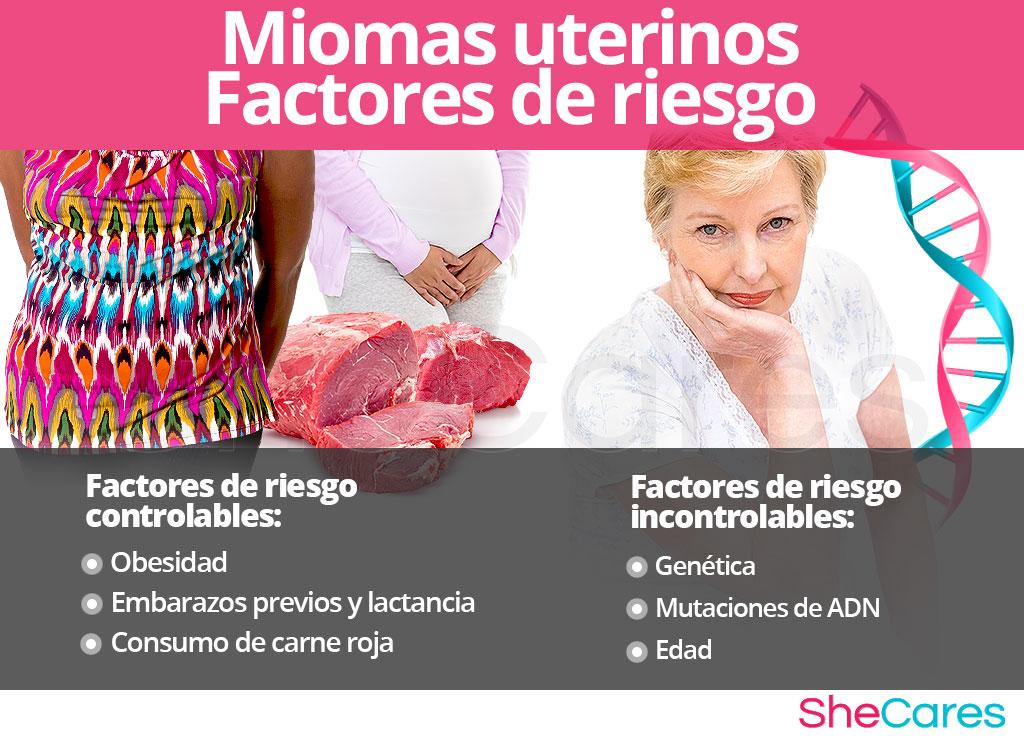 Factores de riesgo para miomas uterinos