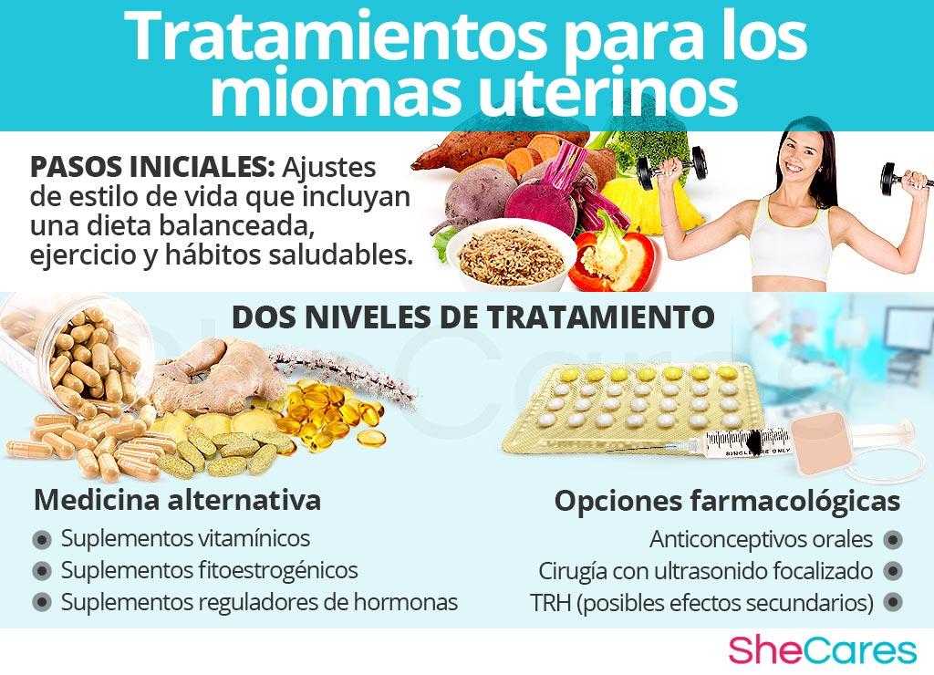 Tratamientos para los miomas uterinos