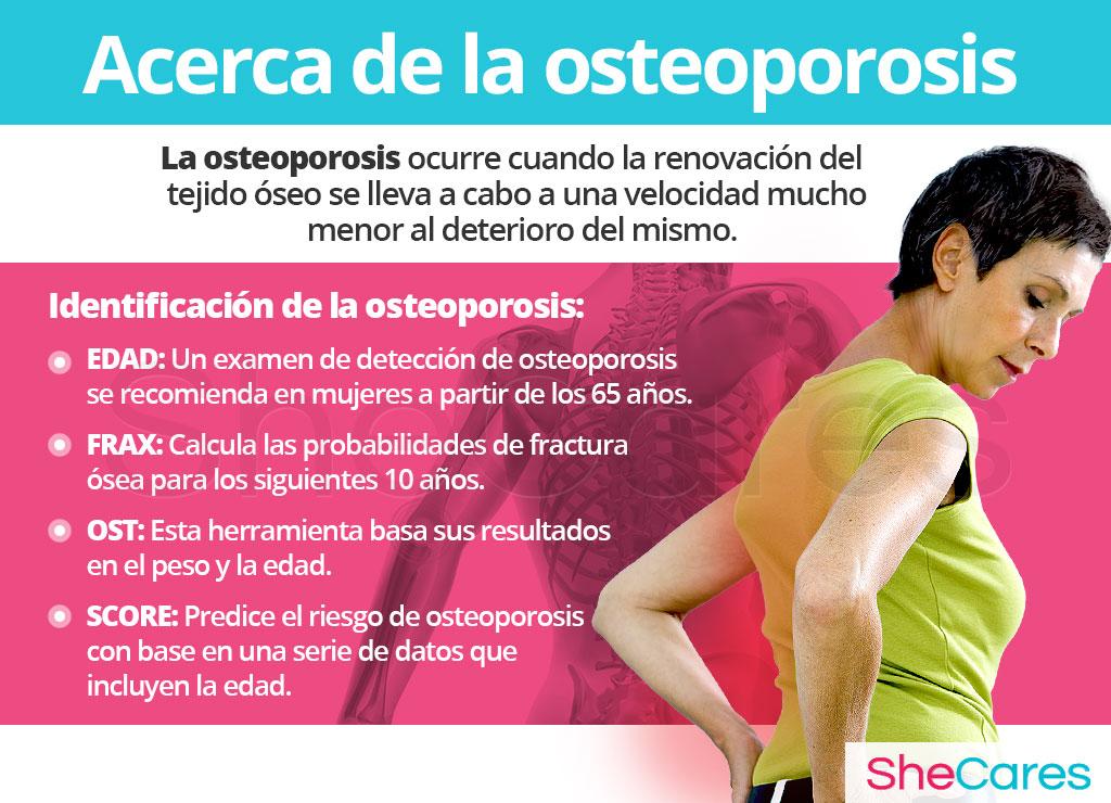 Acerca de la osteoporosis
