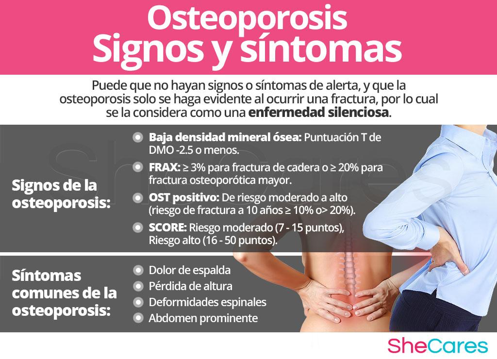 Signos y síntomas de la osteoporosis
