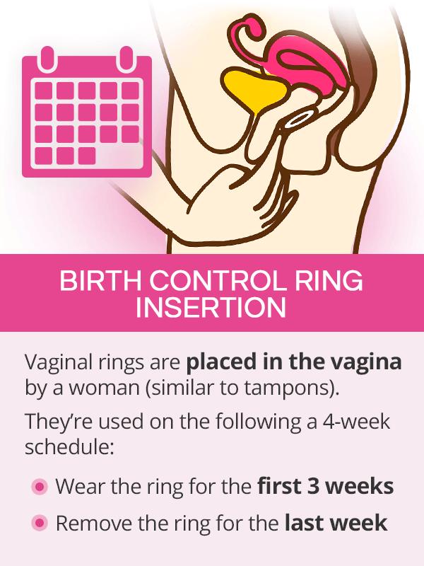 Birth control ring insertion