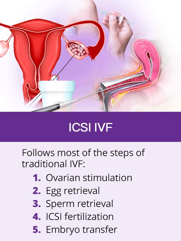 ICSI IVF