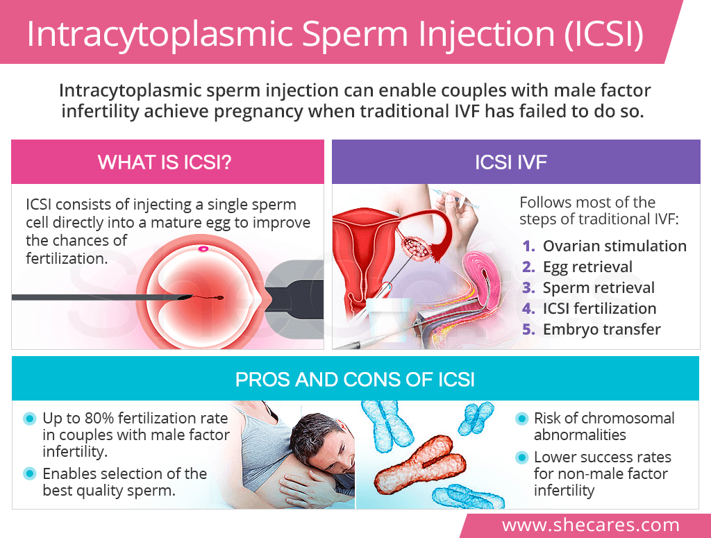 Intracystoplamic Sperm Injection (ICSI) | SheCares