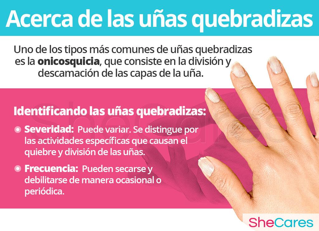 Acerca las uñas quebradizas