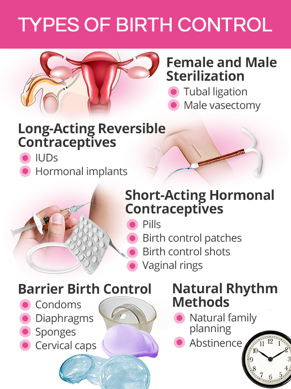 Types of birth control