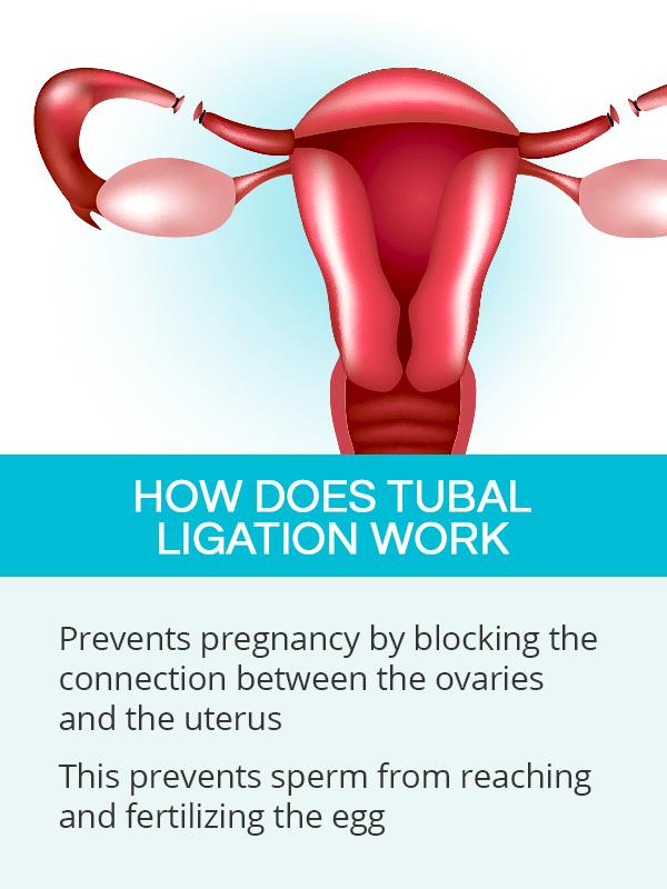 How does tubal ligation work
