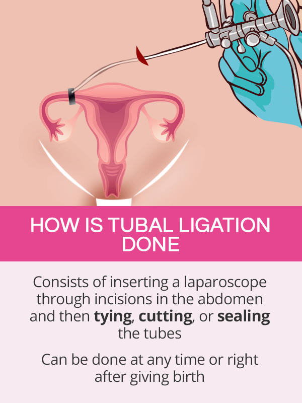 How is tubal ligation done