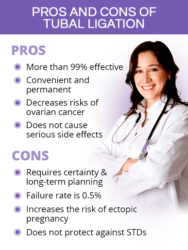 Pros and cons of tubal ligation