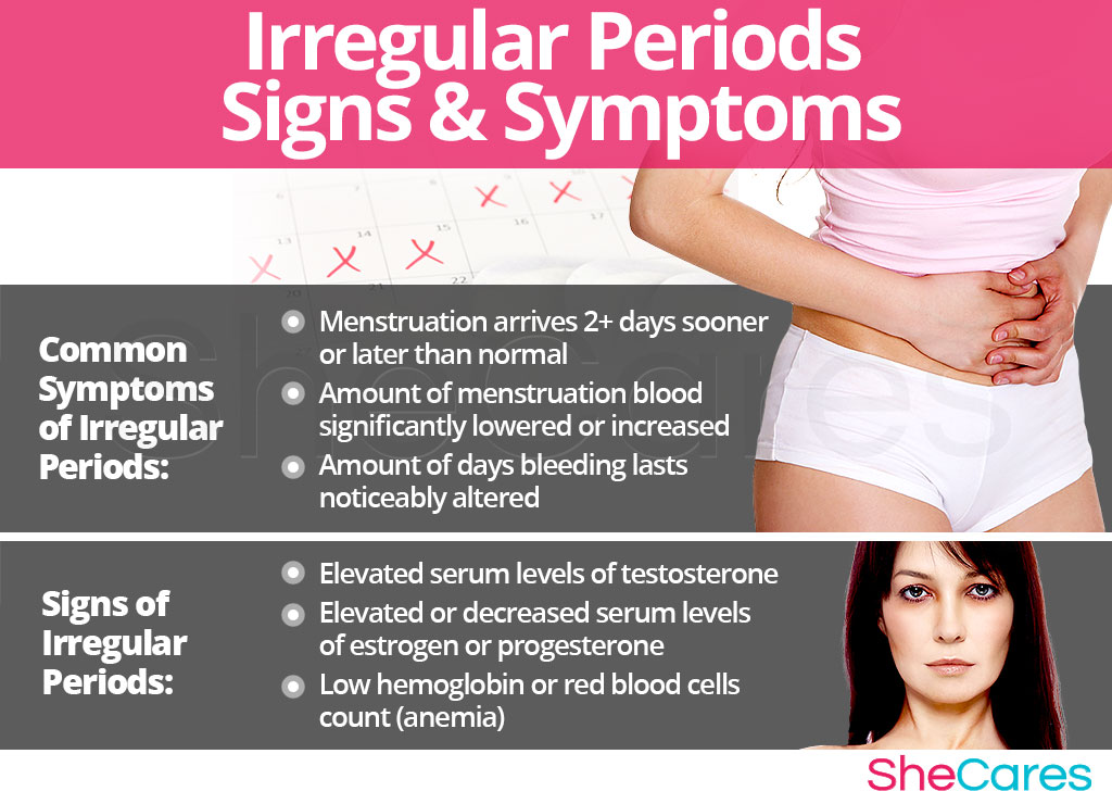 Irregular Periods - Signs and Symptoms